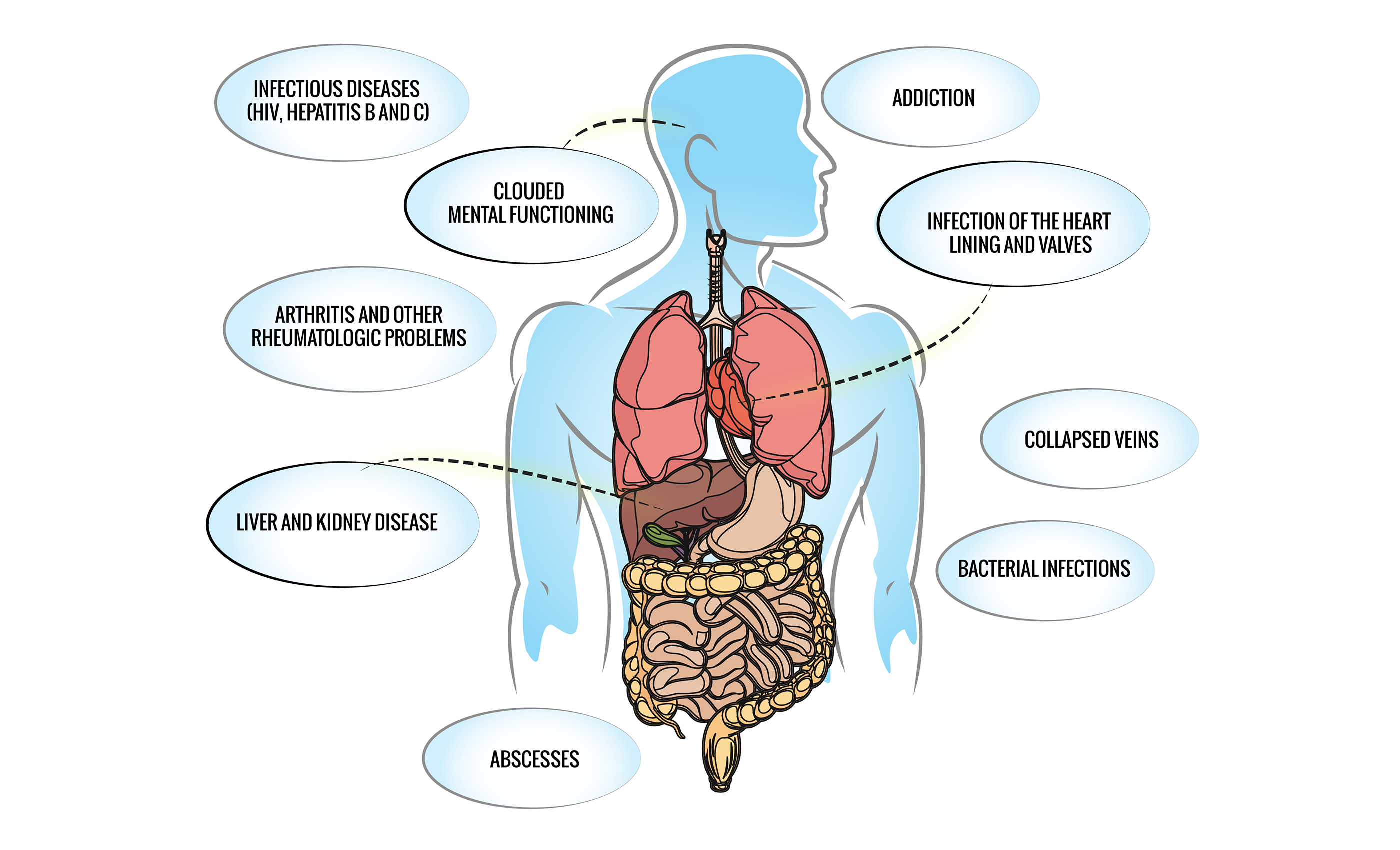 Infographic: health damage to body caused by drug abuse